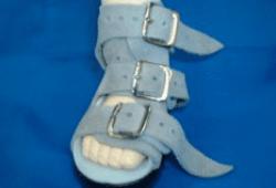 Фиксация стопы в брейсах