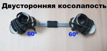 Угол отклонения стоп в брейсах при двусторонней косолапости