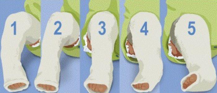 Вид и этапы коррекции в гипсовых повязках