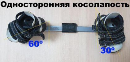 Угол отклонения стоп в брейсах при односторонней косолапости
